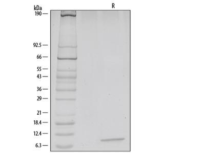 Recombinant Human / Rhesus Macaque / Feline CXCL12 / SDF-1 alpha