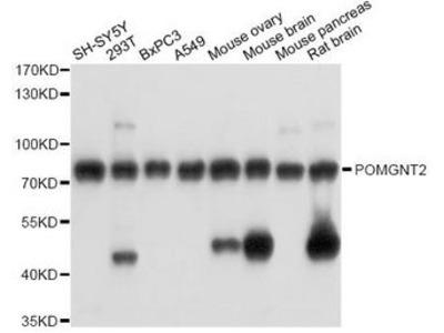 POMGNT2 / GTDC2 Polyclonal Antibody