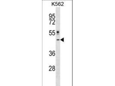 CRLF1 Polyclonal Antibody