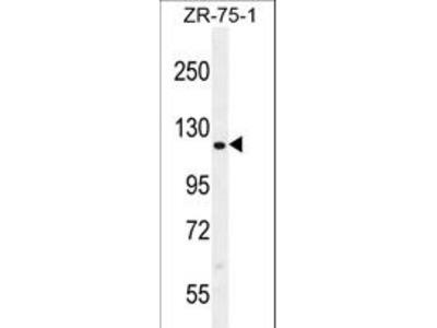 CCDC33 Antibody