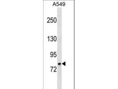GLB1 / Beta-Galactosidase Antibody