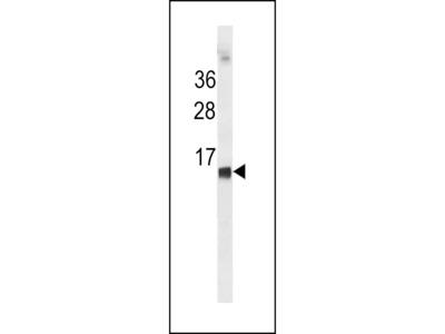 HBE1 / Hemoglobin Epsilon 1 Antibody