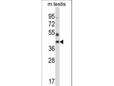 POMK / SGK196 Antibody