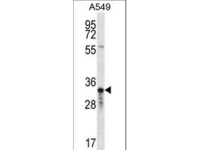 OR4F5 Polyclonal Antibody
