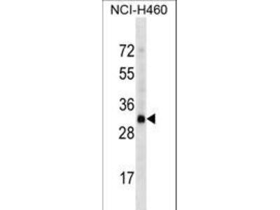 OR4D2 Polyclonal Antibody