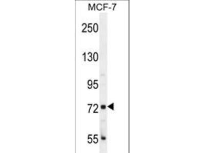 CTAGE4 Antibody