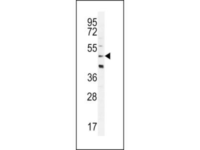 CRHR2 / CRF2 Receptor Polyclonal Antibody