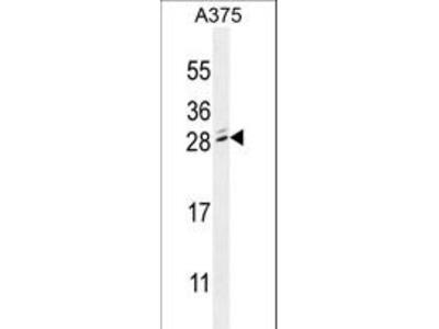 MBD3L2 Antibody