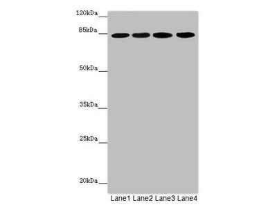 LRSAM1 Polyclonal Antibody
