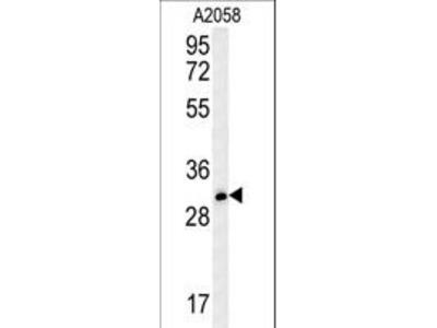 TRIM73 Antibody