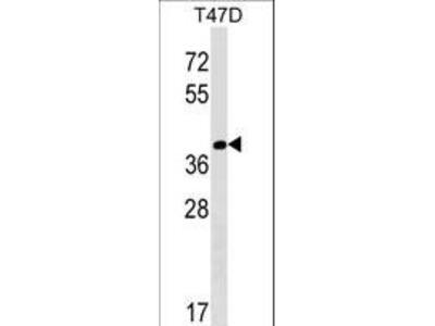NTAN1 / PNAD Polyclonal Antibody