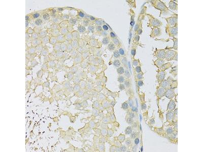 SLC2A9 / GLUT9 Antibody