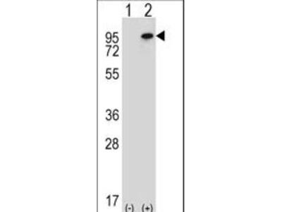 NSD3 / WHSC1L1 Polyclonal Antibody