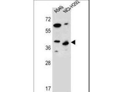 PPP1R42 / LRRC67 Antibody
