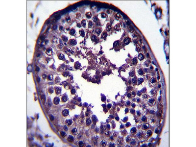 GAGE12H Antibody