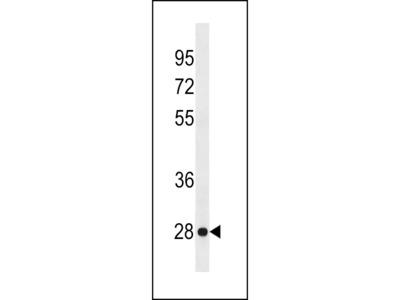 KLRF2 Antibody