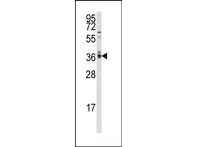 PP2Ac / PPP2CA Antibody