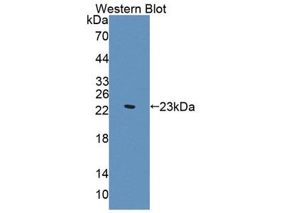 SVIL / Supervillin Antibody