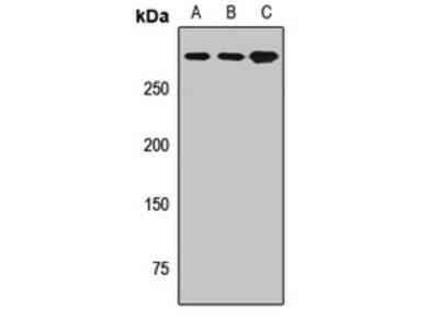 EVPL / Envoplakin Polyclonal Antibody