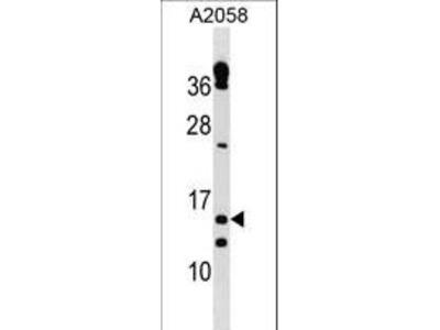 TXNRD3NB Antibody