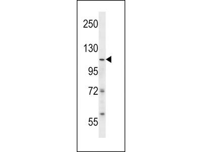 SMARCA5 / SNF2H Antibody