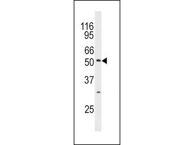 MAPK10 / JNK3 Antibody