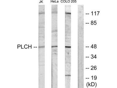 AGPAT9 / MAG1 Antibody