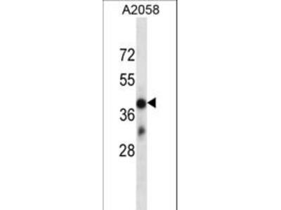 OR4D6 Polyclonal Antibody