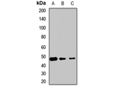 ETF1 / ERF1 Antibody