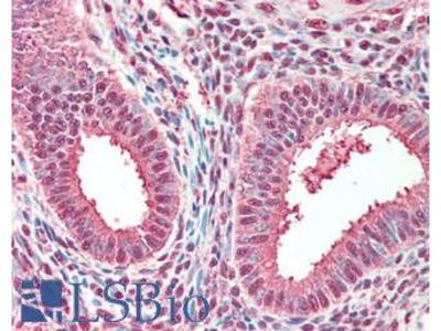 TPI1 / TPI Antibody