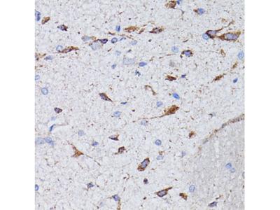 AVP / ADH / Vasopressin Polyclonal Antibody
