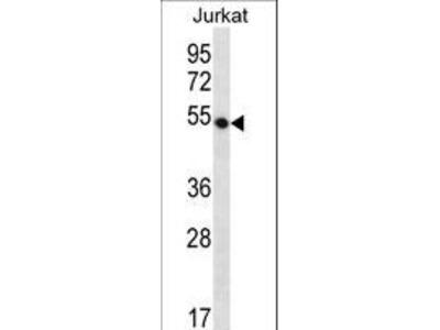 DCAF12 / WDR40A Polyclonal Antibody