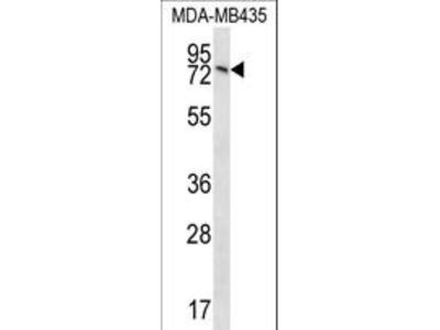 UNC84B / SUN2 Antibody