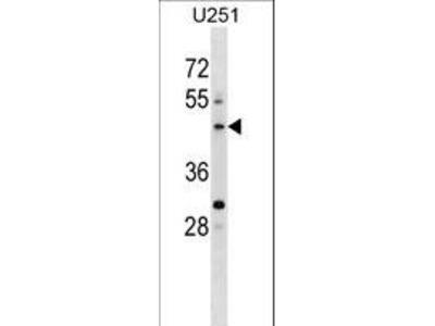 PLEKHO2 Polyclonal Antibody