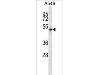 NUDCD1 Polyclonal Antibody