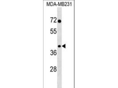 SNAPC3 Polyclonal Antibody