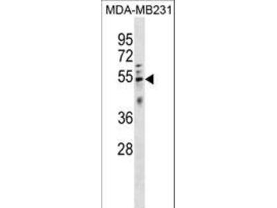 HTRA4 Polyclonal Antibody