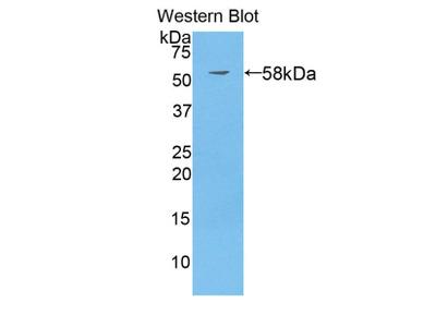 SUOX / Sulfite Oxidase Monoclonal Antibody