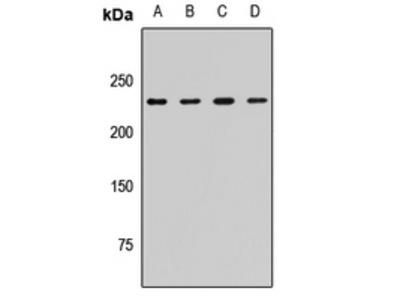 CKAP5 / ch-TOG Polyclonal Antibody
