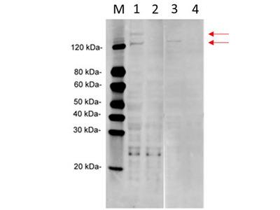 MS / MTR Monoclonal Antibody