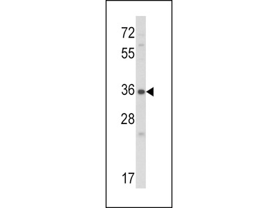 CTGF Antibody
