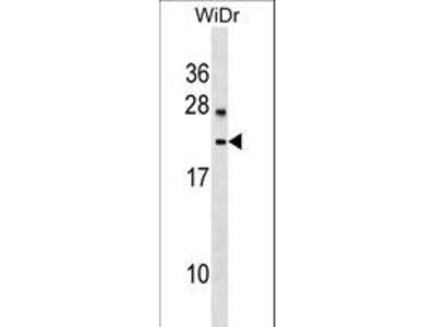 LYZL6 Polyclonal Antibody