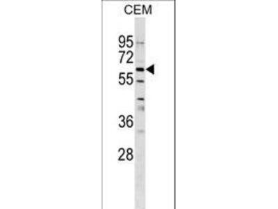 GPNMB / Osteoactivin Antibody