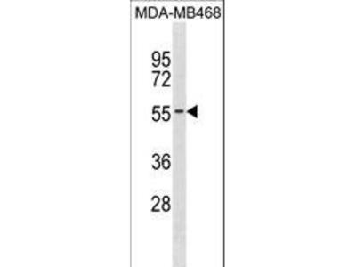 KCNK6 / TWIK-2 Polyclonal Antibody