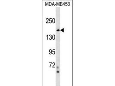 TONSL Antibody