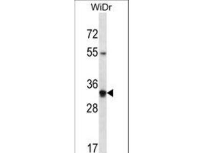 OR2W5 Polyclonal Antibody