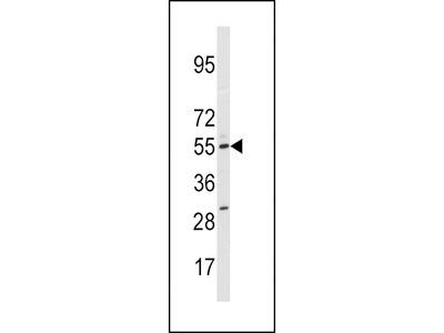 P450SCC / CYP11A1 Polyclonal Antibody