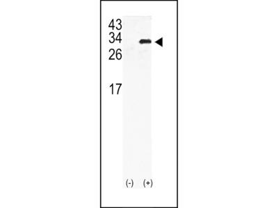 GJB6 / CX30 / Connexin 30 Antibody