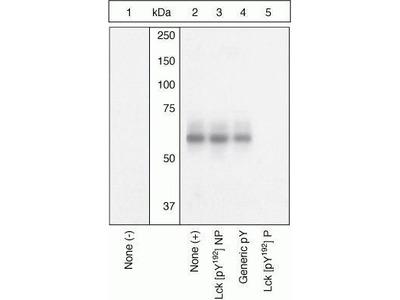 Anti-Lck (phospho Tyr192) antibody