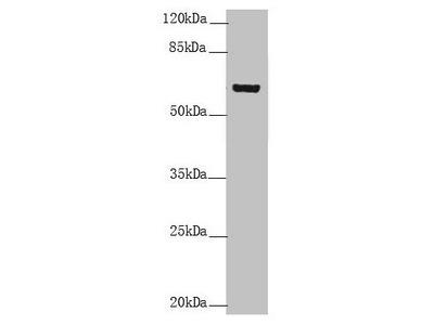 KRT6B / CK6B / Cytokeratin 6B Antibody
